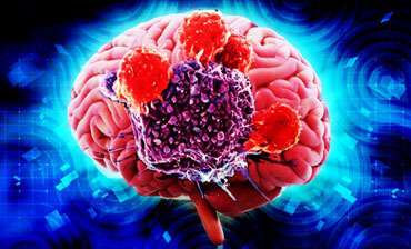 Further founding on relationship between blood sugar and brain tumors